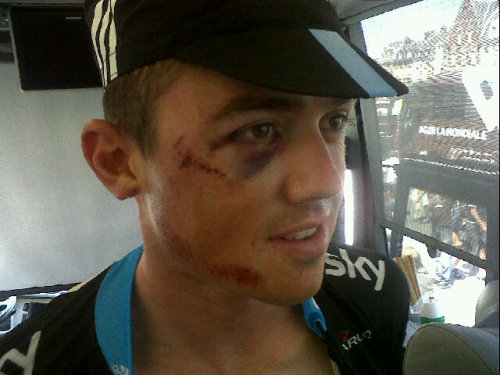 Simon Gerrans with his war wounds acquired on stage 3.  Still ready to race. (photograph via @michaelibarry on twitter)