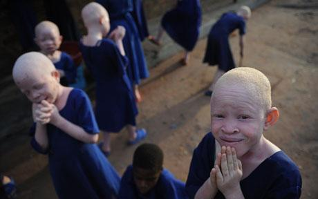 The murder is the latest in a series of albino killings in Sub-Saharan Africa, where sufferers of the rare skin pigmentation condition are concentrated. Earlier this year, another 11-year-old albino child was killed close to the same spot in Swaziland and her hand was removed. Police believe both children may have been targeted because of a belief by witch doctors that the blood and body parts of albinos - who lack pigment in their eyes, hair and skin - can bring good luck and fortune when used in potions. (via Albino girl, 11, killed and beheaded in Swaziland 'for witchcraft' - Telegraph)