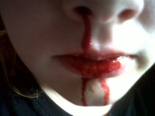 Yay, Got another blood nose. Mmmm metalic'eee
