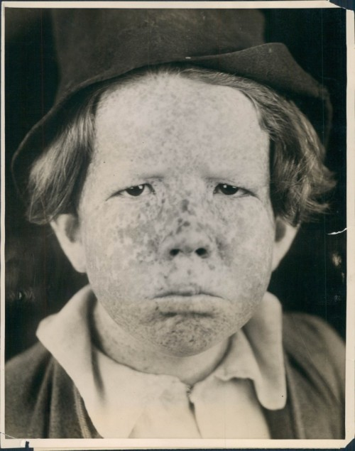 "1922 Mickey Daniels the most ""freckled"" face in the world"