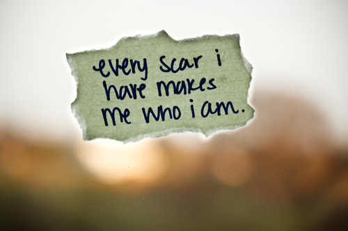 Every scar I have makes me who I am. Stronger than yesterday :)