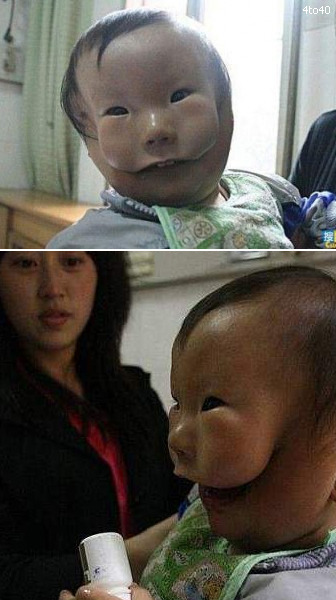 "stonerkidswag:  fuckingstoner:    xlovelikethis: A 14-month-old baby in China suffers from a severe facial deformity that gives him the appearance of having two faces or a mask over his face. Reblog if you care!  I'll reblog this because it's cool, not because I care. I really don't care. He's alive and I assume he can function perfectly fine. He's already a year old. I don't really understand why you would put reblog if you care. Maybe I'm just an asshole.  Yeah, the kid is alive and looks decently happy there's no reason to ""care"". That's like if I made a post like ""I have aspergers, reblog if you care"". I'm not dying or trying to raise money to save my life so there is no reason to give a fuck. Plus, the kid is probably getting facial reconstruction surgery as soon as he's old enough."