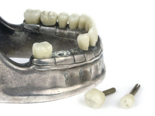 Vecabe' Dental Model, 1920s Phisick Medical Antiques