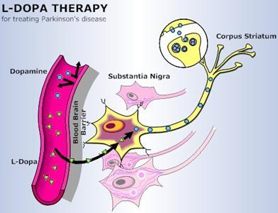 neurolove:  Treatment for Parkinson's : L-DOPA The most obvious treatment for Parkinson's would be to replace the dopamine in the brain that is being lost by dopaminergic neuron degeneration.  Dopamine itself, however, cannot pass the blood brain barrier to get into the brain.  L-DOPA, the precursor of dopamine (it is broken down to create dopamine), can pass the blood brain barrier however.  This means that we can administer L-DOPA, it will enter the brain, and then dopaminergic neurons with DOPA decarboxylase (the enzyme that breaks down L-DOPA) will convert L-DOPA into dopamine, giving the dopaminergic neurons that remain in the brain more dopamine to release and make up for the ones that have died. This treatment works very well in the early stages of Parkinson's.  Unfortunately, as time goes on, more and more L-DOPA is needed to help movement because more neurons are dying in the substantia nigra and there is a bit of tolerance to L-DOPA.  At the higher doses that are needed, there are much more dramatic side effects, including horrible hallucinations, twitches, obtrusive mood swings, etc.  Knowing what we know about the basal ganglia circuitry, we know that these are due to increased DA activating the direct pathway of the basal ganglia and increasing thoughts/emotions as well as movements. Unfortunately, because of these side effects, L-DOPA is just a temporary treatment and cannot be used as long-term as needed for someone trying to live with Parkinson's disease.  There are other possible treatments that I will discuss next. [Image Source]  This post goes along nicely with the reblog about basal ganglia disorders. I think it's important to say that L-DOPA isn't just treatment, it's an intermediary of an important catecholamine synthesis, as illustrated below…