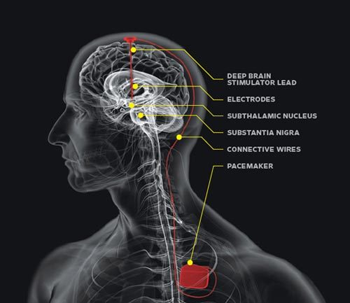 "Another treatment for Parkinson's: DBS Deep brain stimulation (DBS) involves the implanting of electrodes in the brain that effectively ""inactivate"" a certain region.  It can be quite sophisticated, using multiple electrodes that can then have different patterns of stimulation.  There is a pacemaker that is implanted elsewhere in the body, usually where it can be removed to replace batteries and the like without too bad of side effects (so not in the brain tissue).  In Parkinson's, the electrodes are surgically implanted into the subthalamic nucleus (STN) or the internal segment of the globus pallidus (GPi).  For a refresher on the basal ganglia pathways, go here. STN excites GPi and GPi inhibits thalamus, both of which effectively decrease movements.  In Parkinson's, patients are having trouble moving due to the decreased dopamine feeding into the basal ganglia loops.  Therefore, acting on STN or GPi and effectively inactivating those regions makes it so that movements will be easier. It is also interesting to note that DBS can be used on other disorders, such as severe cases of obsessive-compulsive disorder (OCD) and Tourette's Syndrome.  Tourette's is characterised by motor and verbal tics that can be very intrusive, not what you usually see on TV (for instance, I know a patient whose uncontrollable tic is to poke their eye and they had blinded that eye with it).  DBS of the thalamus usually can be helpful for patients suffering from Tourette's (I think you can figure out why it might be from what you know about the basal ganglia circuitry). There are still more potential treatments for Parkinson's that I will continue to discuss. [Image Source]"