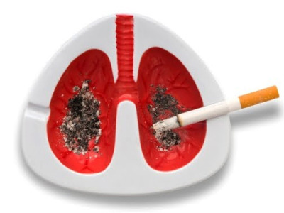 cranquis:  Smoker's Lungs I like how the cigarette resting in the holder looks like a pleurocentesis needle, draining off a lung-cancerous pleural effusion… :)