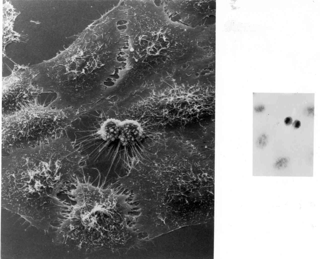 The origin of the immortal HeLa cell line, which has been invaluable for medical research, including the polio vaccine.  20 tons of the cells are now in existence.  (Henrietta Lacks)