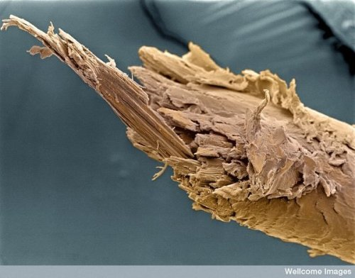 Split end of a human hair.