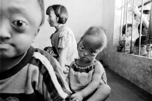 "Agent Orange Continues to Poison VietnamMarjorie Cohn ""June 15, 2009 From 1961 to 1971, the U.S. military sprayed Vietnam with Agent Orange,  which contained large quantities of Dioxin, in order to defoliate the  trees for military objectives. Dioxin is one of the most dangerous  chemicals known to man. It has been recognized by the World Health  Organization as a carcinogen (causes cancer) and by the American Academy  of Medicine as a teratogen (causes birth defects)."" … more at { uruknet }"
