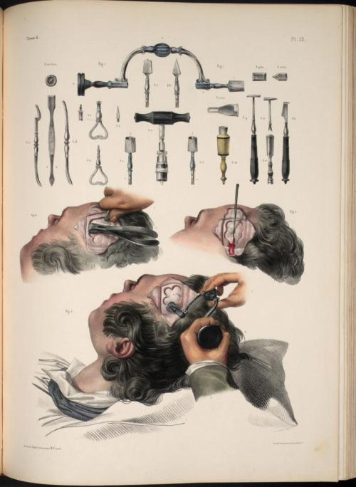 "Jacob, Nicolas Henri, 1781-1871 ""Surgery and surgical instruments for trephining"" (from ""Traité complet de l'anatomie de l'homme"" / 1831-1854 )"