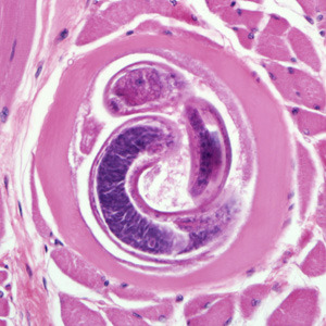 "Trichinella spiralis encysting in some muscle with a routine H&E stain. When doing Ova and Parasites, patients fill out a history form for us. Either many seem to think it is a joke or our form is not very good. One time, someone put ""Narnia"" as their last travel destination. And for the yes/no question of ""known carrier?"", people like to write, ""Air Canada"". Although these botched forms are not useful, I still enjoy reading them."