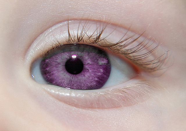 Alexandria's Genesis, a.k.a violet eyes (a genetic mutation).When someone is born with Alexandria's Genesis, their eyes are blue or gray at birth. After six months, the eyes begin to change from their original color to purple, and this process lasts six months. During puberty, the color deepens to dark purple, a deep purple, a royal purple, or a violet-blue color and remains that way. It does not affect the person's eyesight.Those who have this mutation will never grow any facial, body, pubic, or anal hair (not including hair on their head, on their ears, noses, eyebrows and eyelashes) Women also do not menstruate, but are fertile.  WOW LUCKY FUCKING  BITCHES