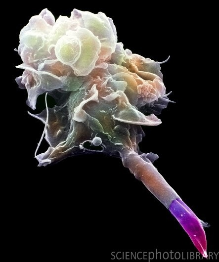 Coloured SEM of a macrophage engulfing a mauve Leishmania sp. parasite.