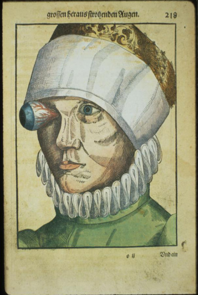 mudwerks:  mudwerks:  (via Ophthalmodouleia, manuel d'ophtalmologie en 1583 | La boite verte) [ow…]  [my eye feels like this today…]  Dislocated eye!