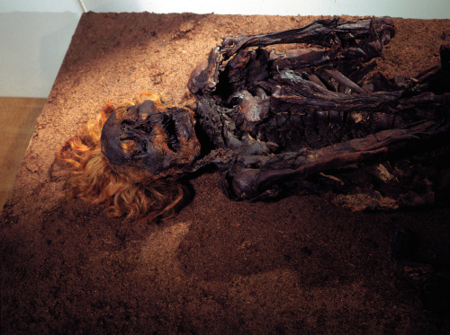 "Meet Red Franz. He's a bog body from Bourtanger Moor in Germany, named for the color of his flagrant hair, beard, and eyebrows. He lived some time between 200 and 400 A.D. His hair wasn't red in real life; likely, the reddening was caused by the acids in the peat where he hung out for so long.  According to Archaeology magazine, he was quite the horseman:  After he was moved to a local museum, scientists examined Franz and discovered ""rider's facets"" on his thigh bones, protrusions caused by increased use of the muscles and connective tissues in the hip, which can occur from constant horseback riding. They also found that he had a long-healed injury to his upper arm, possibly caused by an arrowhead, and a broken (and healed) collarbone, both of which he survived for a long time before his execution. Museum curators only detected the actual cause of Franz's death, when, after decades of being displayed on his back, they turned him over onto his abdomen and saw evidence of a deep gash in his throat, still visible in the remaining soft tissue of the back of his neck and shoulders.  Image Source: Canadian Museum of Civilization."