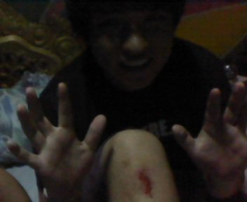 this is what i get for longboarding with friends at night. :)) 4/23/11 1:23am