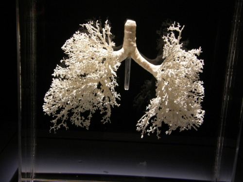 A cast of the respiratory tree (via: Bodies exhibit fieldtrip)