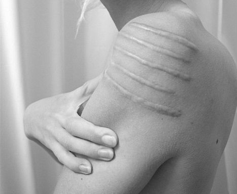 thatswhyismile456:  These scars are beautiful.
