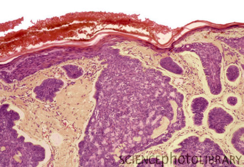 Basal cell carcinoma, false colored section. Cells within the tumour are purple and have an abnormal arrangement. The skin surface is at top (red). When I made my visit to a very good Mohs clinic in town (not as a patient), there was an elderly gentleman with a horn on his head. By which I mean he had a grey-black tumor the size of a very large egg on the top of his head which was actually shaped like a broken horn. He had spent years hiding it under a hat and had no family and friends to push him to see a doctor about it until that day. When the doctor cut into it, the massive amount of necrotic tissue underneath stunk so badly, it knocked out the nurse in the room. It was… well, it was something else.