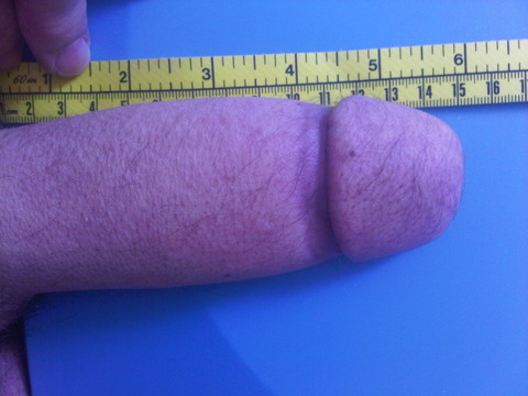 onlyjxx:  really great phalloplasty results a friend just sent me. done by dr christopher/ralph and their team in london. thought some of the guys interested in phallo would appreciate this!  If all his work is this good, I'm willing to travel to London for bottom surgery. This is actually one of the better (if not the best) results I've seen. Very real looking. :)