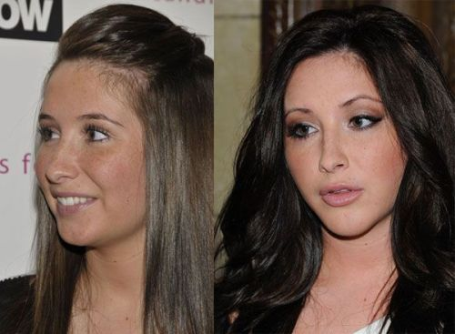 Bristol Palin is a Kardashian now. To be honest, I like the change.  She looks less like a slut who got knocked up and more like a slut who knows her way around a vial of spermicide and a box of Magnums.  This new slut would never be caught pregnant.  She's much more likely to give a blowjay in the parking lot of the Viper Room for a line of coke and extra lip gloss.