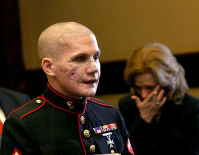 The beautiful face of courage: Lance Cpl. William Kyle Carpenter USMC Carpenter, 21, of Gilbert lost the eye, most of his teeth and use of his right arm from a grenade blast Nov. 21 near Marjah, Helmand Province, Afghanistan.Friends and family say he threw himself in front of the grenade to protect his best friend in Afghanistan, Cpl. Nick Eufrazio This deserves more notes then anything on Tumblr. It's sad to say stupid pictures of a flower some girl takes with a Nikon D40 that her parents bought her for christmas or a picture of A Day To Remember has more notes then this. The world is fucked up. So much respect for this man.  :'(