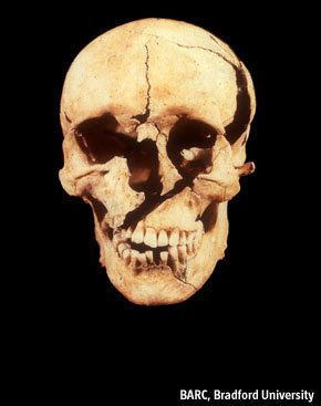 Great article from The Economist about the skeletons of the Battle of Towton (England, 1461).