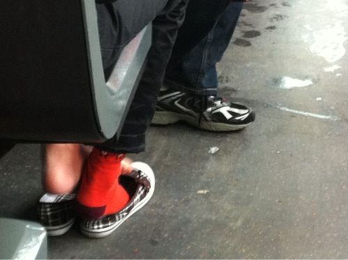 Confused.  This is a bus. These are someone's feet. Those are her flats. One crusty foot is sheathed by a sock. The other crusty foot is not.