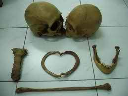 "Even bones can say ""I Love You"". :))"