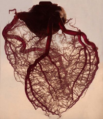 The human heart stripped of fat and muscle, with just the angel veins exposed.