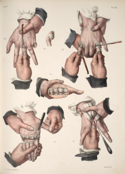 Victorian diagram of proper finger amputation procedure.