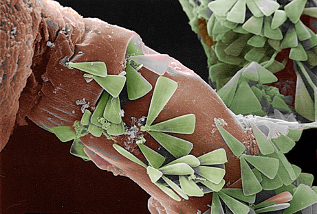 ohscience:  Tiny green diatoms create the illusion of a fernlike forest as they attach to their marine-invertebrate hosts.