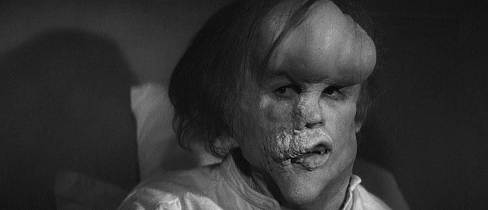 John Hurt in 'The Elephant Man'.