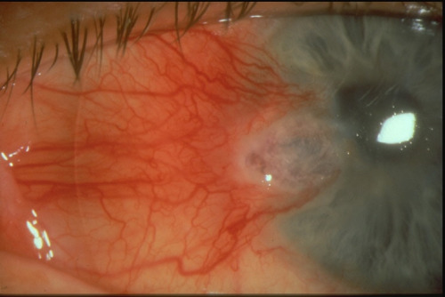 eyedefects:  Corneal melting after perforating trauma