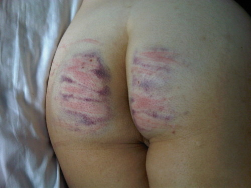 The morning after her first caning.