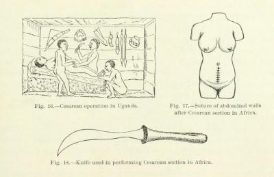 From Anomalies and Curiosities of Medicine, by Walter L. Pyle and George M. Gould, 1896.