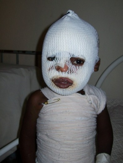 deformutilation:  Child burn victim ~ Anace pulled a cup of hot tea off of a table and onto her head, face and chest.