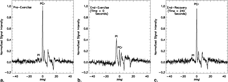 Phosphorus-31 spectra acquired  from an MRI before the start of exercise (a), at the cessation of exercise (b) and at the end of the measured recovery period (c). All postexercise spectral amplitudes are shown normalized to the pre-exercise phosphocreatine peak amplitude.  This is an example of one of the tests we perform on our subjects in the lab.  Creatine, as you may know, is the first energy source used by the muscle to drive contraction.  This is why it is such a popular supplement for strength athletes.   However, this energy source does not last that long and even reps as high as 12 you may be relying on other metabolic pathways in the muscle.  Although it is ephemeral in nature, note in this picture how fast it recovers back to normal after exercising (240 seconds or 4 minutes).  This is part of the reason why resting a long time in between sets, which is mainly what powerlifters and strength athletes do, is beneficial to those wishing to increase their strength on exercises.  That way, you can ensure your maximal effort on each lift.  Greenman & Smithline Acad Radiol. 2011 Jul;18(7):917-23. Epub 2011 May 4.