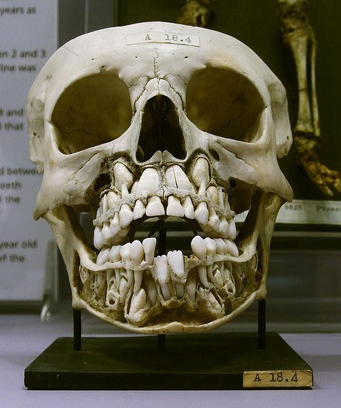 Skull of a child growing adult teeth - amazing.