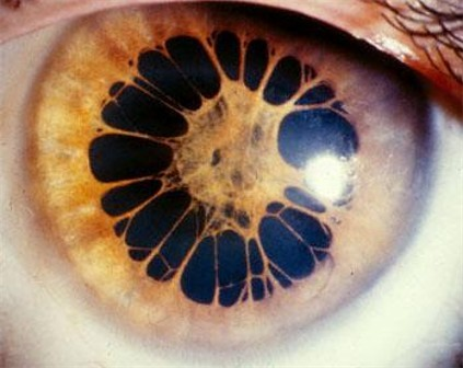 deformutilation:  Pupillary Membrane   Crazy looking