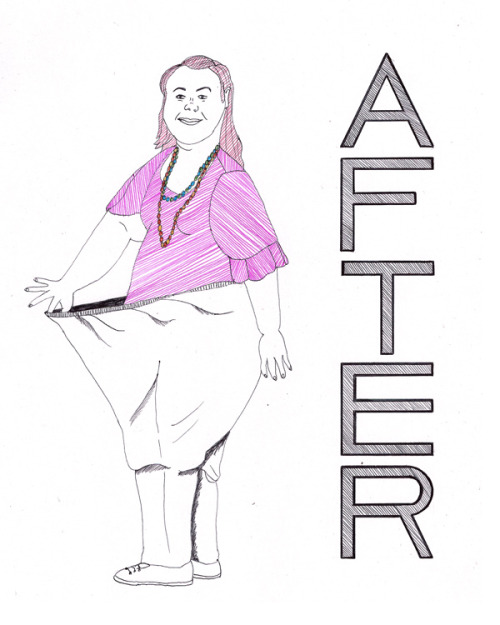 AFTER, 2011 Georgia Davis, 'Britain's Fattest Teenager'