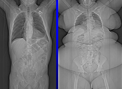geneticist:  X-Ray of an obese individual compared to the X-ray of an average individual (source)  What I found fascinating about this is that the obese individual's ribcage seems to be compressed, but their pelvis seems to be stretched.