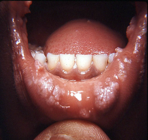 bodysnatched:  Mouth warts.