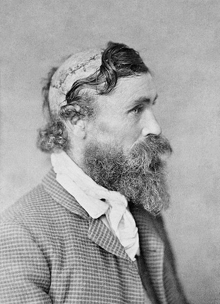 Robert McGee, exceptional scalping survivor (1864)