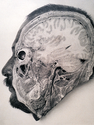 "Dissecting the criminal brain ""If scientists believed they could determine a person's criminality by measuring his head, surely the next step would be to open it up. This 1904 photograph by Argentinian physician Dr. F. Perez shows a section of an executed criminal's brain. Unfortunately, his work merited little results - he found no major differences between the brains of criminals and non-criminals."" Today, things are a little different. Via: 19th and 20th century psychiatry: 22 rare photos  Credit: Dr. Stanley B. Burns. H/T @tlomauro"