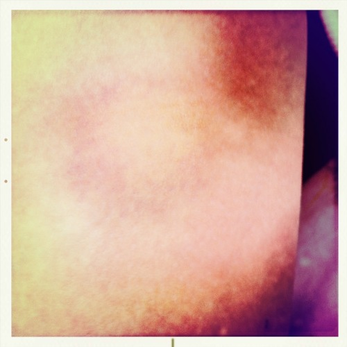 SandersBruise John S Lens, Alfred Infrared Film, No Flash, Taken with Hipstamatic