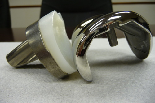 What does an example of a knee joint look like? Take a look at this photo. Modern science has made tremendous progress in advancing medicine. However, people are not guinea pigs and must be fully informed of potential risks, adverse events and complications before they can truly agree to undertake them. Additional photographs and information is available at JointRecall.com, a website sponsored by Gabriel F. Zambrano, P.A., the sponsor of this blog and post. Gabriel F. Zambrano, P.A., is actively investigating cases of failed Metal on Metal (MoM) hip joints, DePuy's recalled ASR MoM implant, as well as the Zimmer NexGen CR-Flex.