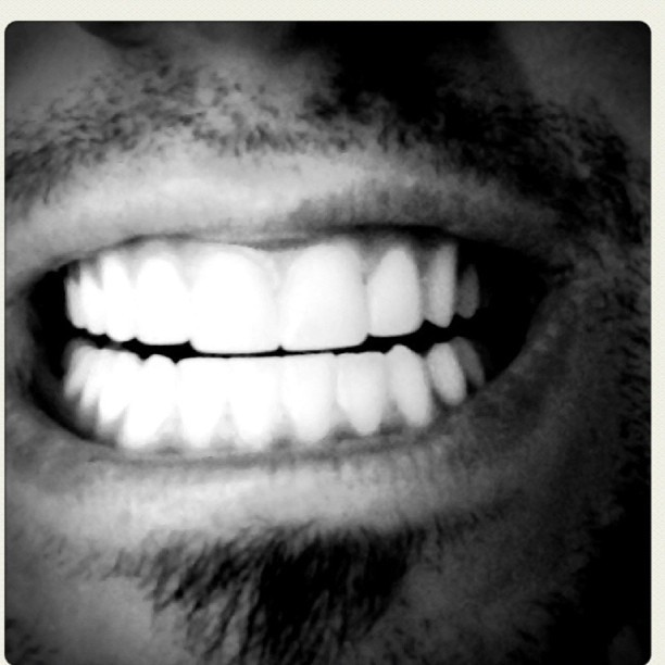 Teeth (Taken with instagram)