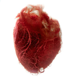 rawmeatbetweenmyteeth:  The Human Heart The fat and extra tissue was removed leaving  pure angel-hair blood vessels to make up it's shape.
