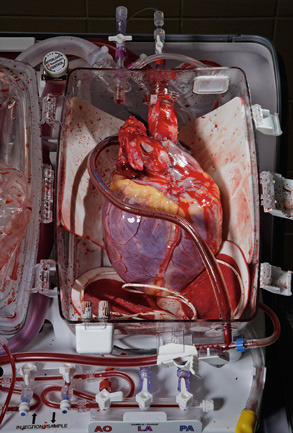 A human heart destined for transplant lies cradled in a TransMedics Organ Care System. The device can keep a heart warm and beating—and viable for many hours longer than the conventional method for handling donor hearts: immersion in a saline solution and packing in ice.